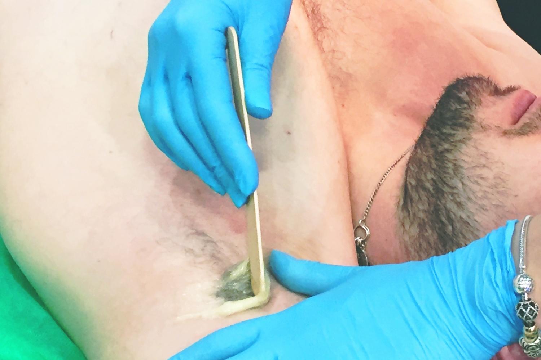 у удаление мужчин в интимных местах волос